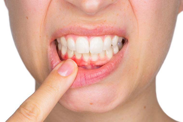 歯肉切除術