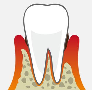 失った骨と歯根膜を再生させるための治療