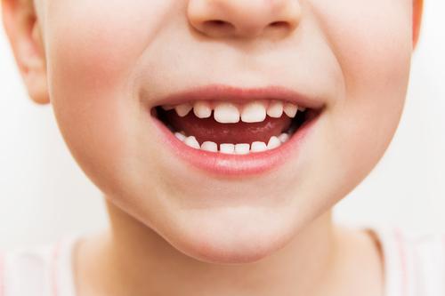 子供のうちから虫歯予防