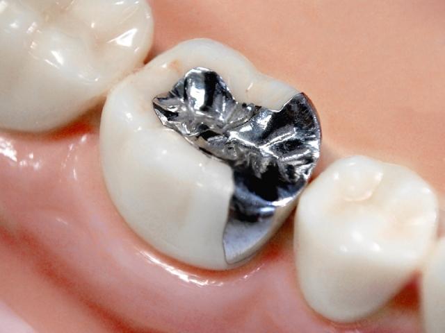 保険治療で用いられる銀歯の問題点