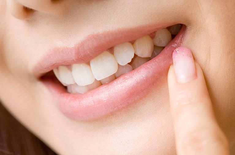 歯並びの改善